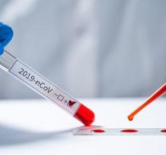 test-covid19-talavera-marazuela-coronavirus